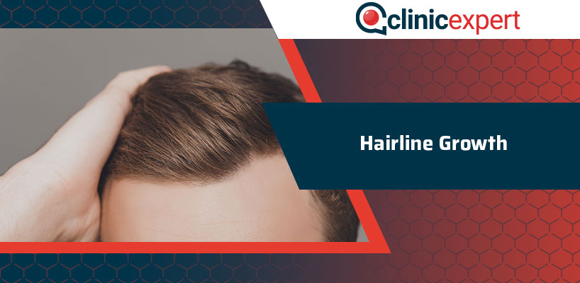 Hairline Growth