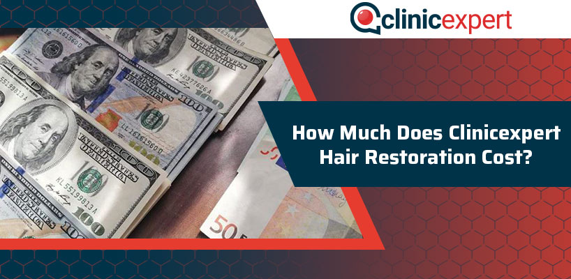 How Much does Clinicexpert Hair Restoration Cost?