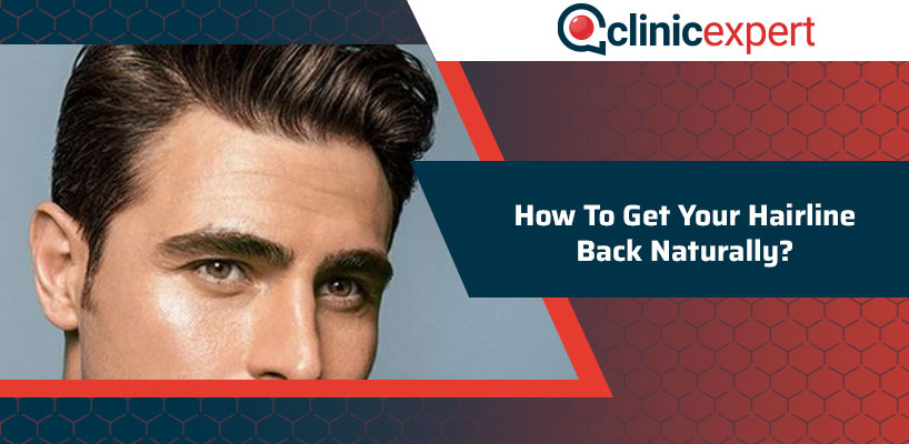 How To Get Your Hairline Back Naturally?