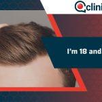 I'm 18 and I'm Balding