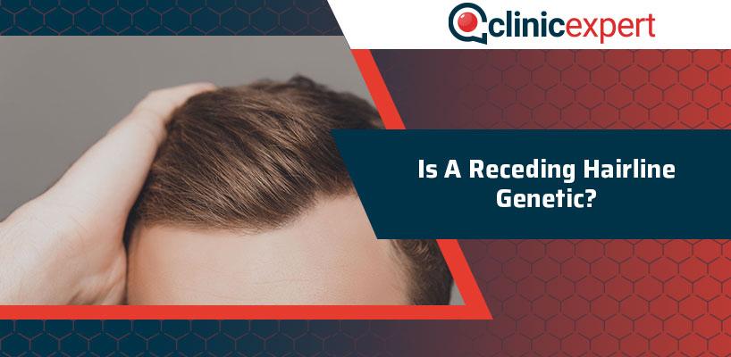 Is A Receding Hairline Genetic?