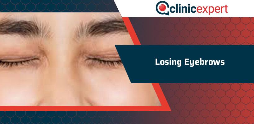 Losing Eyebrows