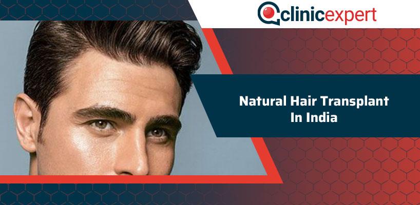 Natural Hair Transplant In India