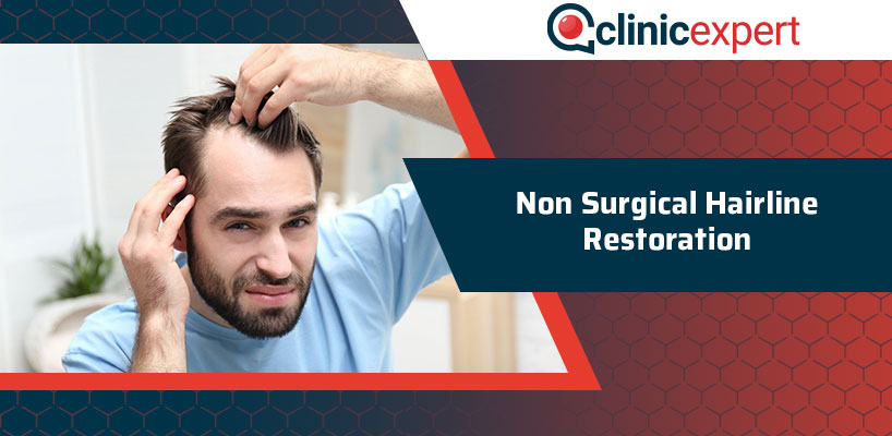 Non Surgical Hairline Restoration