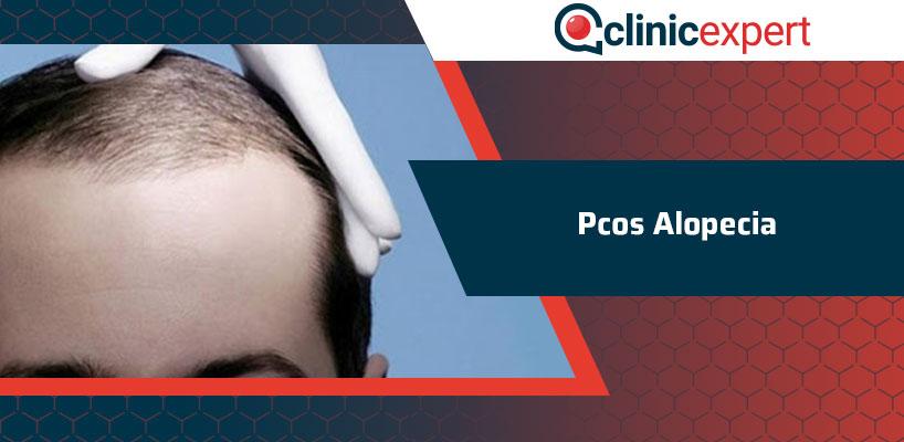 Pcos Alopecia