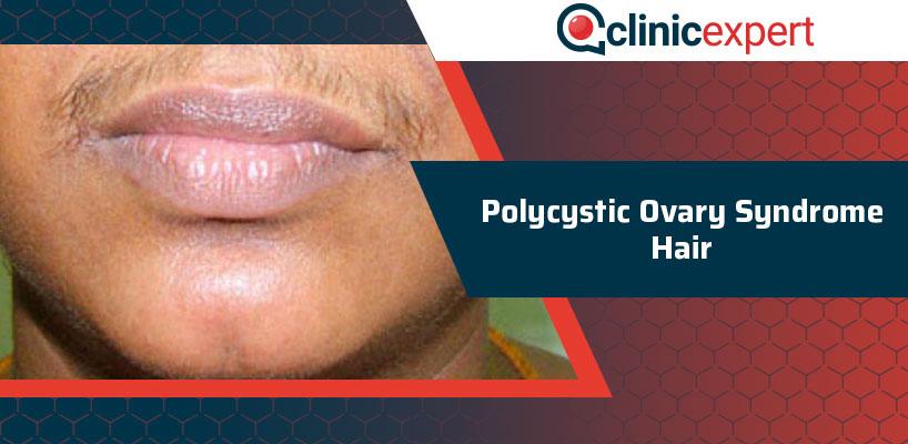 Polycystic Ovary Syndrome Hair