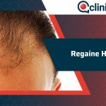 Regaine Hair Results