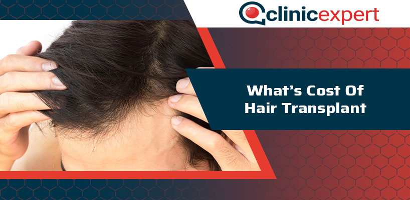 What's Cost Of Hair Transplant?