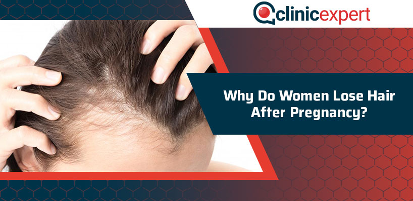 Why Do Women Lose Hair After Pregnancy?