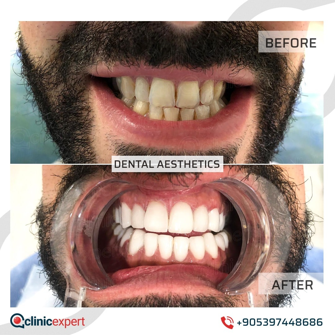 Dentistry Patients