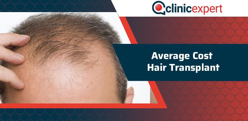 Average Cost Hair Transplant