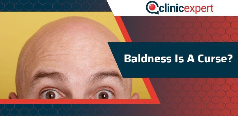 Baldness Is A Curse?