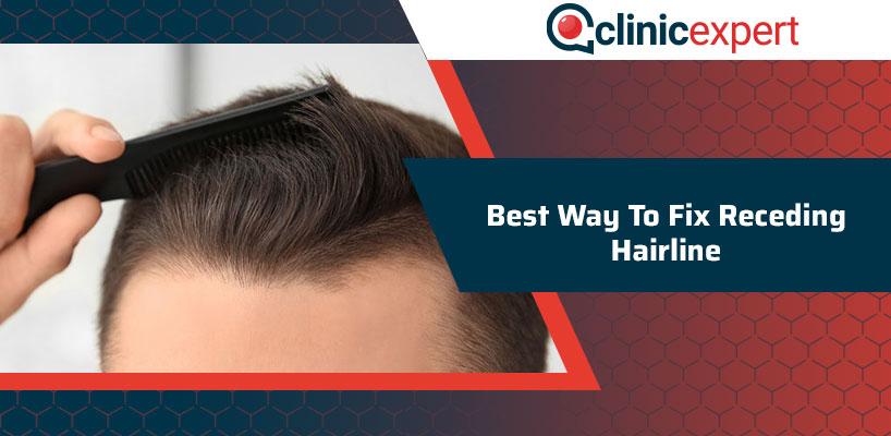 Best Way To Fix Receding Hairline
