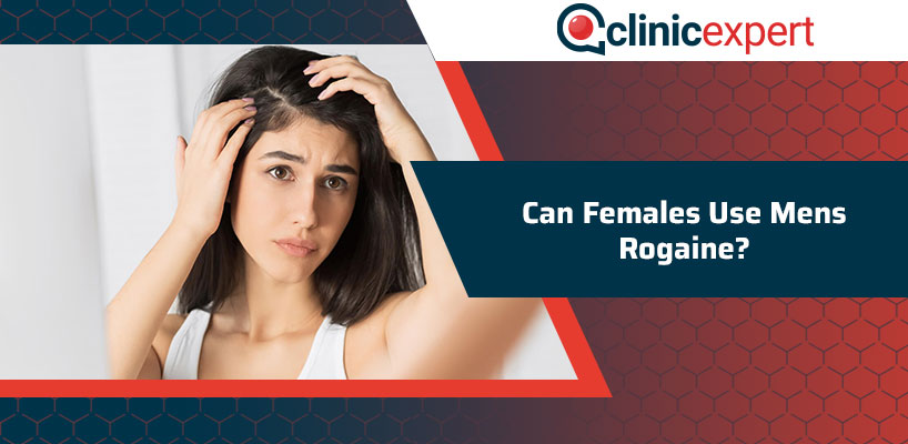Can Females Use Men's Rogaine?