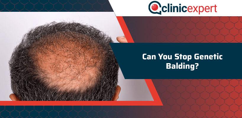 Can You Stop Genetic Balding?