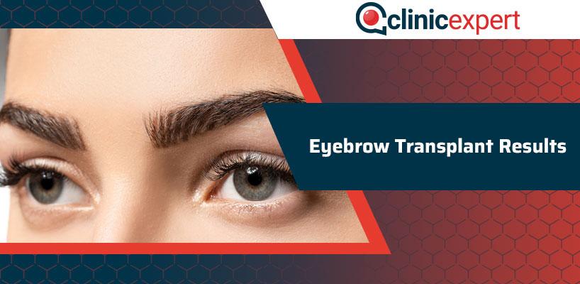 Eyebrow Transplant Results