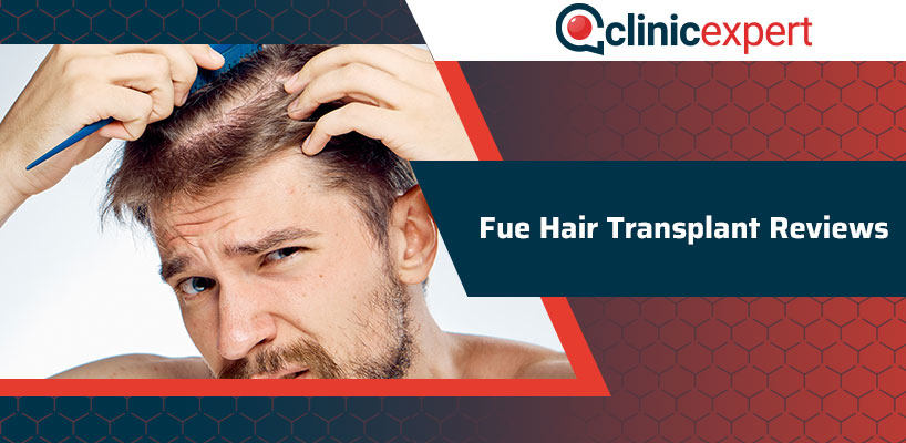 Fue Hair Transplant Reviews