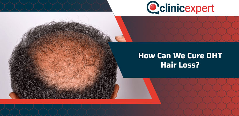 How Can We Cure DHT Hair Loss?