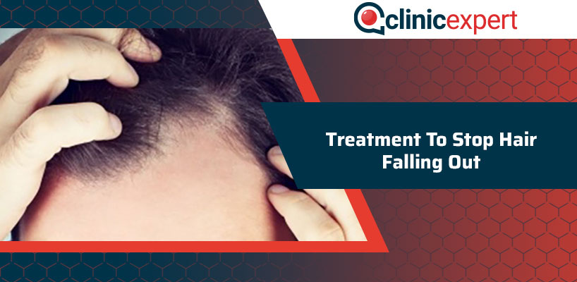 Treatment To Stop Hair Falling Out