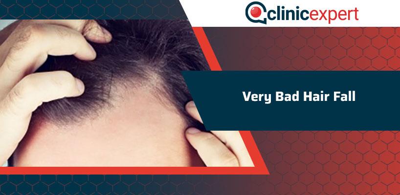 Very Bad Hair Fall