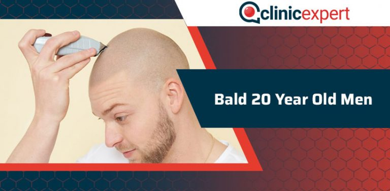 Bald 20 Year Old Men