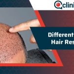 Different Types of Hair Restoration
