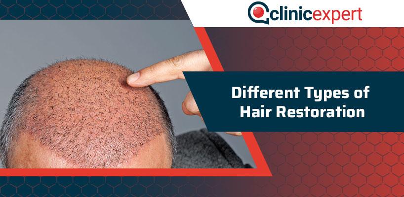 Different Types of Hair Restoration