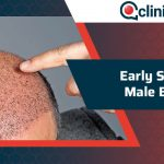 Early Signs of Male Balding