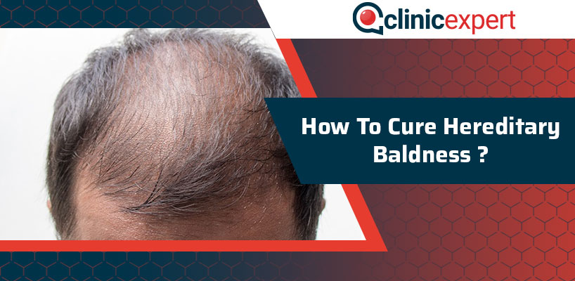 How To Cure Hereditary Baldness?