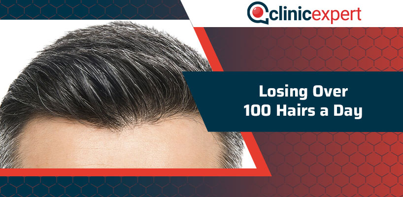 Losing Over 100 Hairs a Day