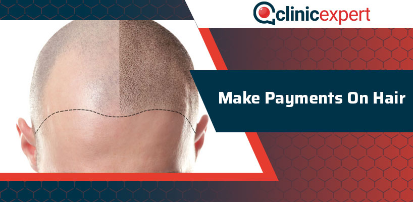 Make Payments On Hair
