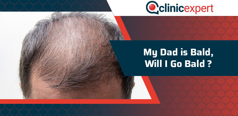 My Dad is Bald Will I Go Bald?