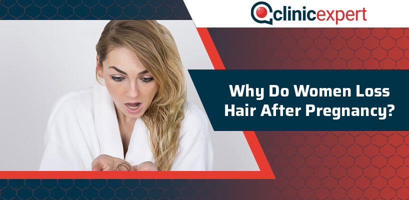 Why Do Women Loss Hair After Pregnancy?