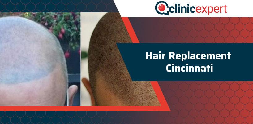 Hair Replacement Cincinnati