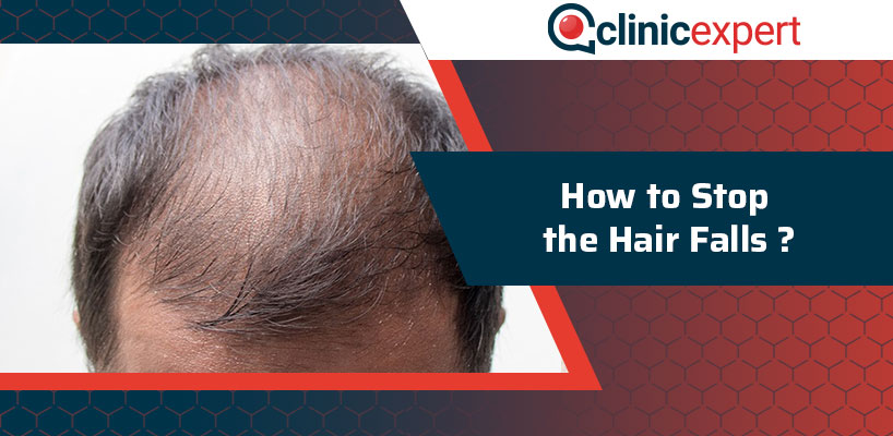 How to Stop the Hair Falls?