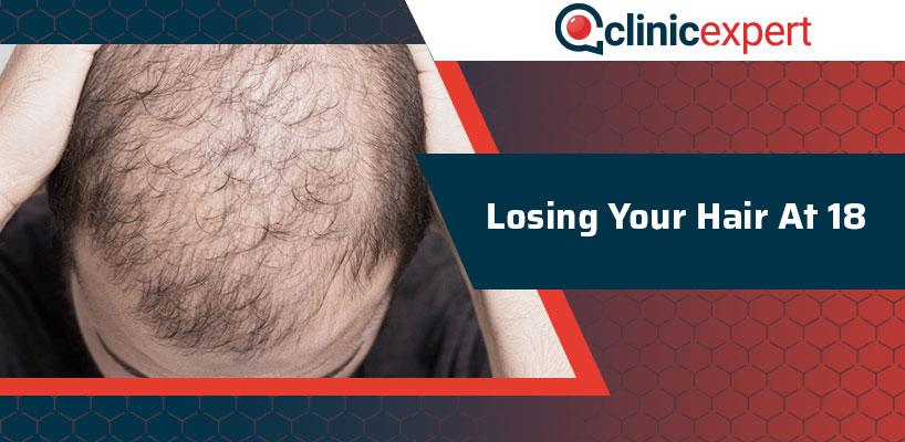 Losing Your Hair At 18