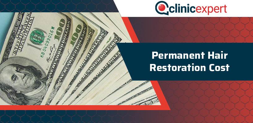 Permanent Hair Restoration Cost