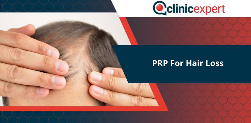 prp-for-hair-loss