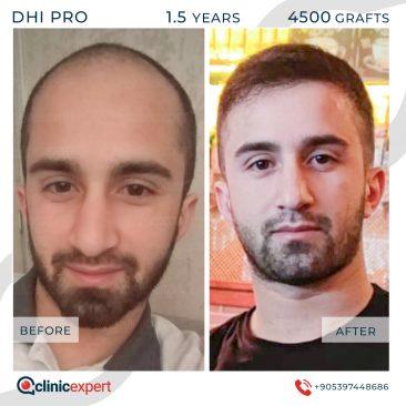DHI Pro Hair Transplant-18 Months-4500Grafts