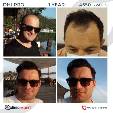 DHI Pro Hair Transplant-12 Months- 4550Grafts