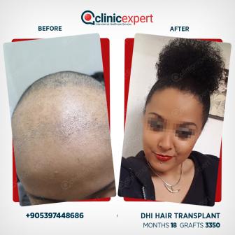 DHI Hair Transplant- 18 Months - 3350 Grafts