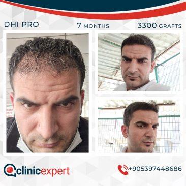 DHI Pro Hair Transplant-7 Months-3300Grafts
