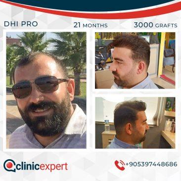 DHI Pro Hair Transplant- 21 Months- 3000 Grafts