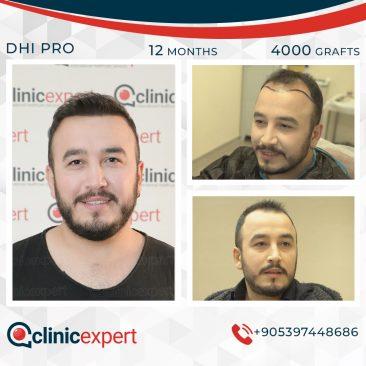 DHI Pro Hair Transplant- 12 Months- 4000 Grafts