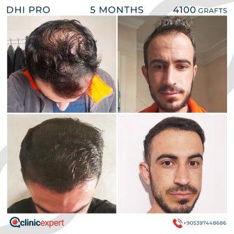DHI Pro Hair Transplant- 5 Months -4100 Grafts