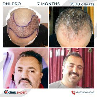 DHI Pro Hair Transplant - 7 Months - 3500 Grafts