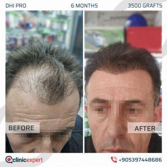 DHI Pro Hair Transplant - 6 Months - 4000 Grafts