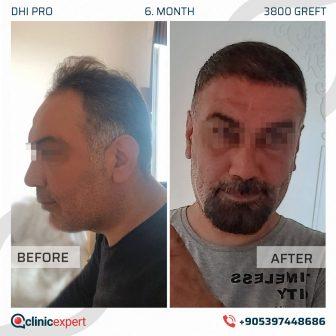 DHI Pro Hair Transplant - 6 Months - 3800 Grafts