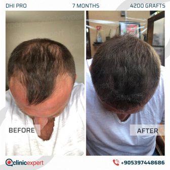 DHI Pro Hair Transplant - 7 Months - 4200 Grafts