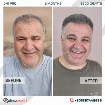DHI Pro Hair Transplant - 6 Months - 3500 Grafts